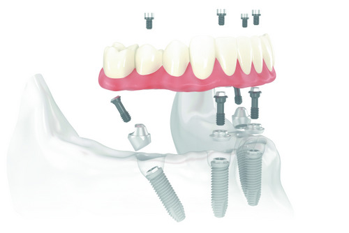Diagram of All on 4 dental implants placed in a jaw